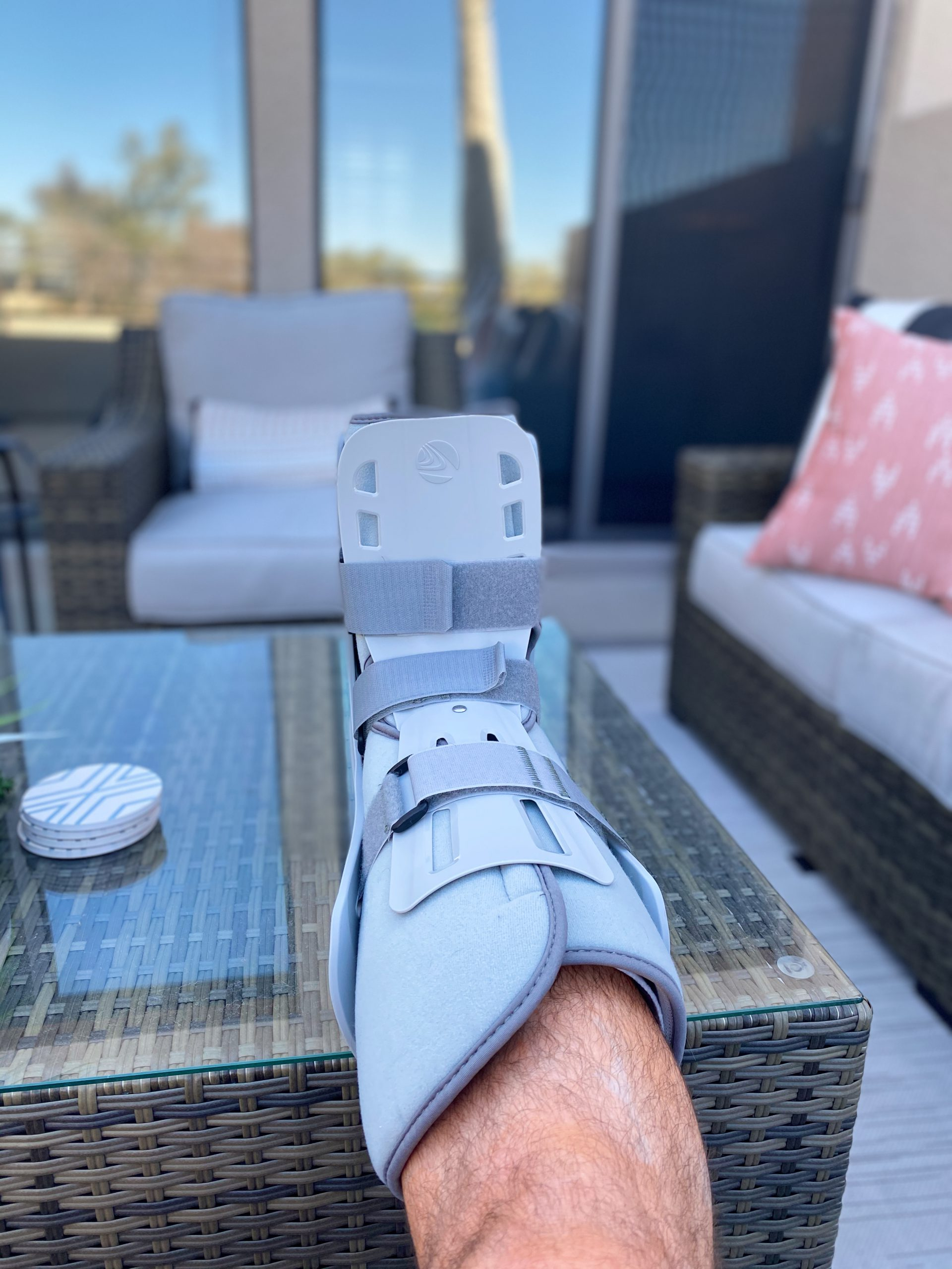 My foot in a cast